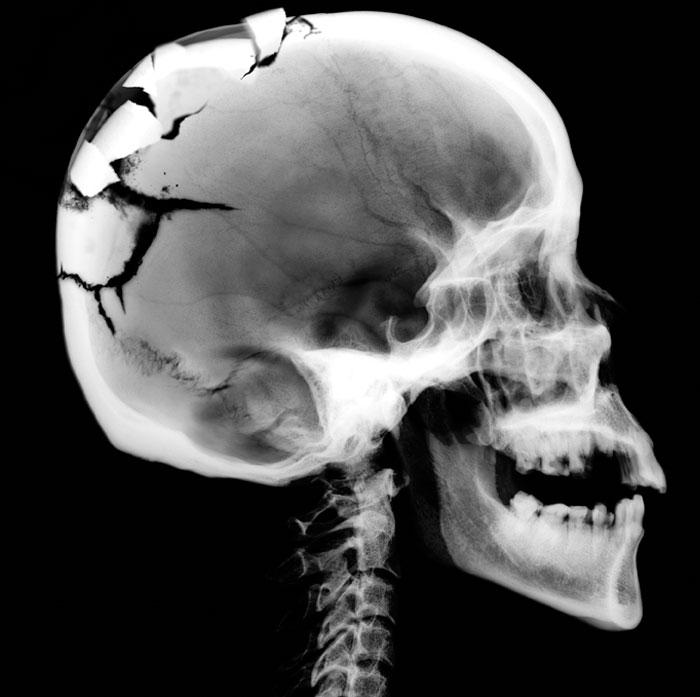 What happened to that skull   Ref   http   www labour gov on ca images    Xray Broken Skull